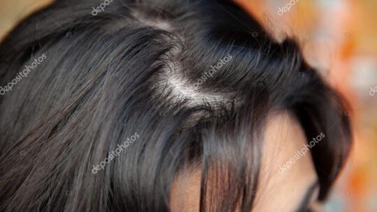 Tyndt hår sker for mange i dag